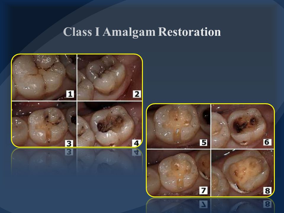  Distal extension into distal marginal ridge to include fissure or caries occasionally requires a slight tilting of bur distally (no more than 10 O ).