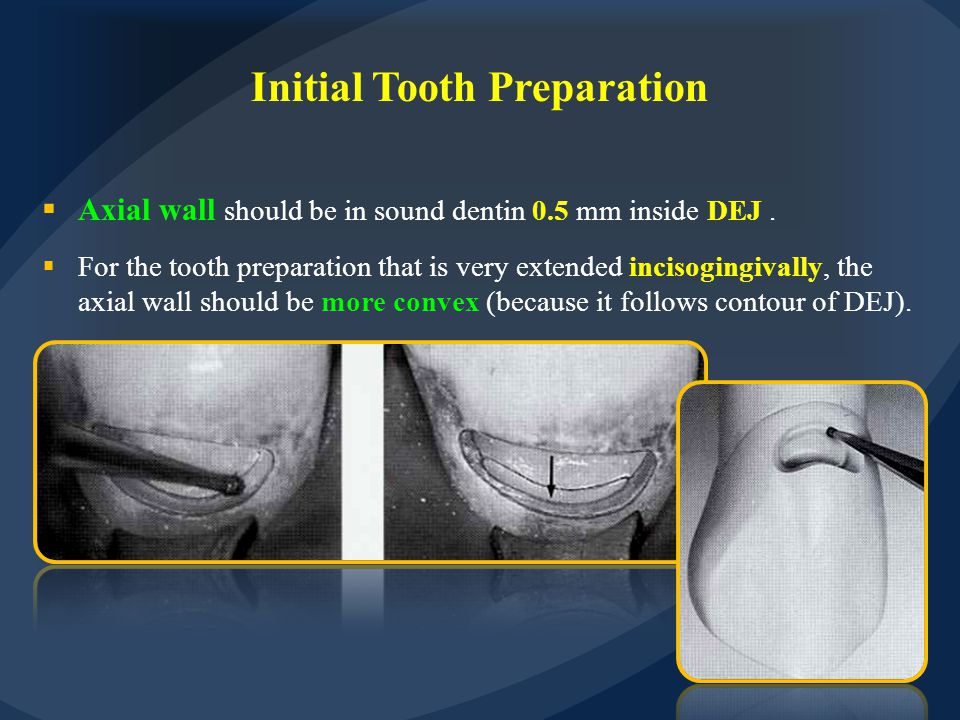 Initial Tooth Preparation  Axial wall should be in sound dentin 0.5 mm inside DEJ.  For the tooth preparation that is very extended incisogingivally