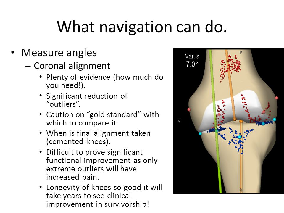 What navigation can do.