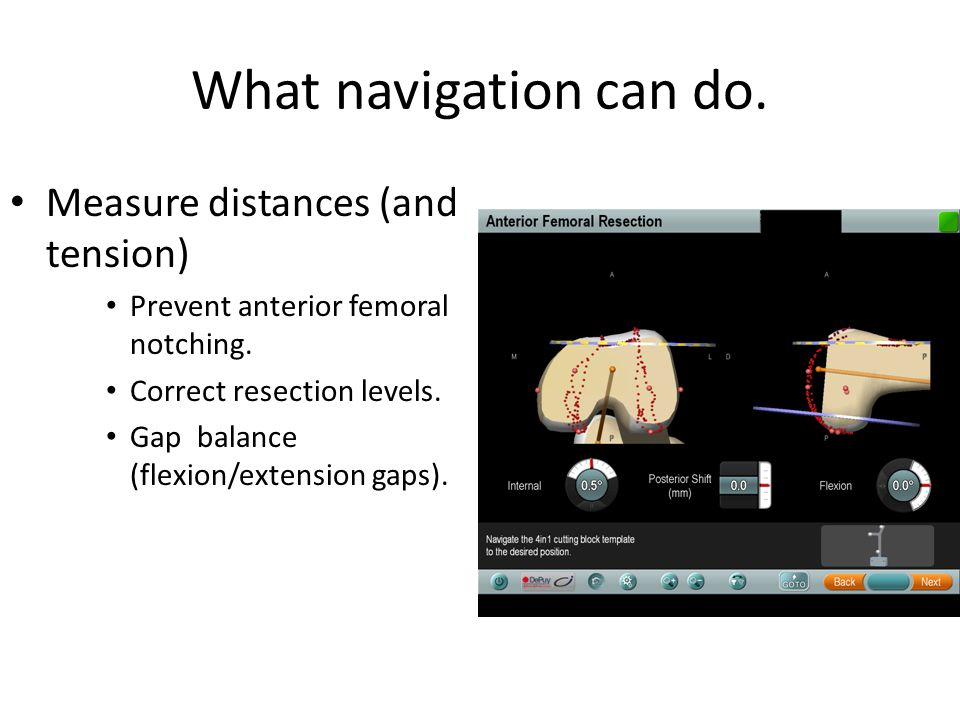 What navigation can do.Measure distances (and tension) Prevent anterior femoral notching.