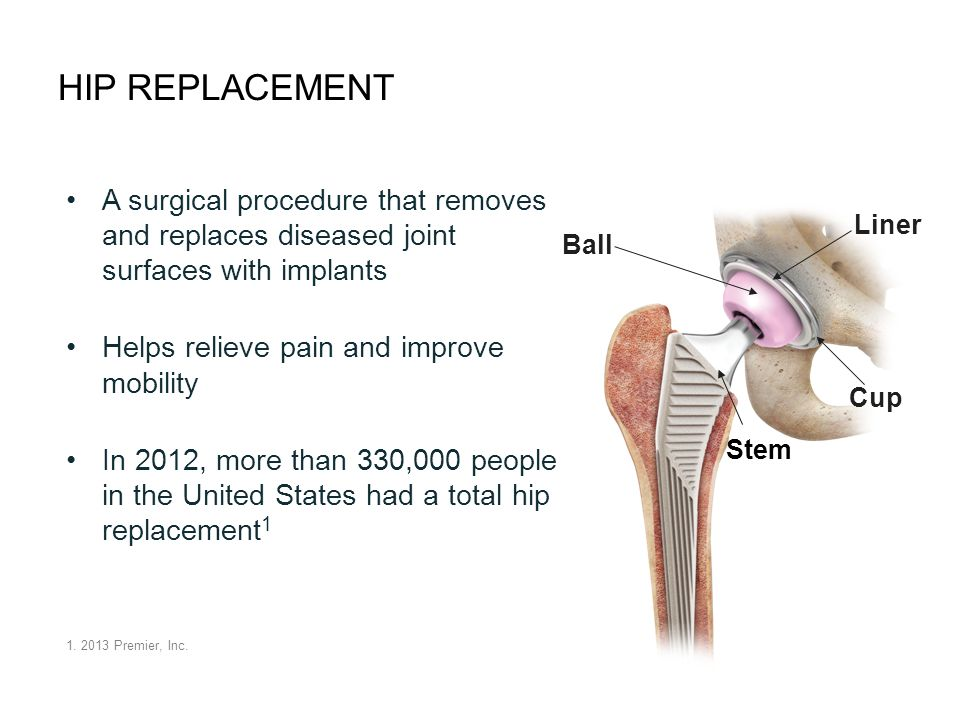 HIP REPLACEMENT A surgical procedure that removes and replaces diseased joint surfaces with implants Helps relieve pain and improve mobility In 2012, more than 330,000 people in the United States had a total hip replacement 1 1.