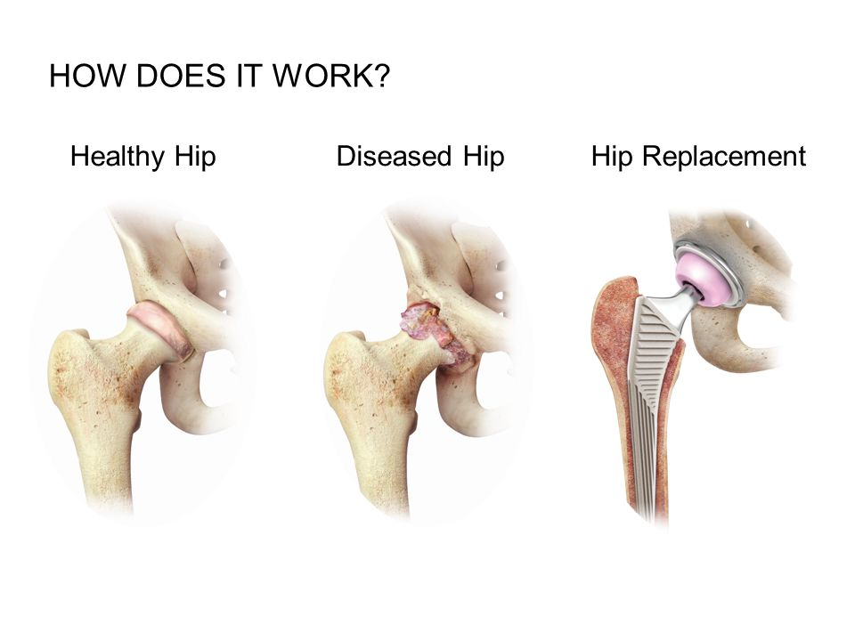 Healthy HipHip Replacement HOW DOES IT WORK Diseased Hip