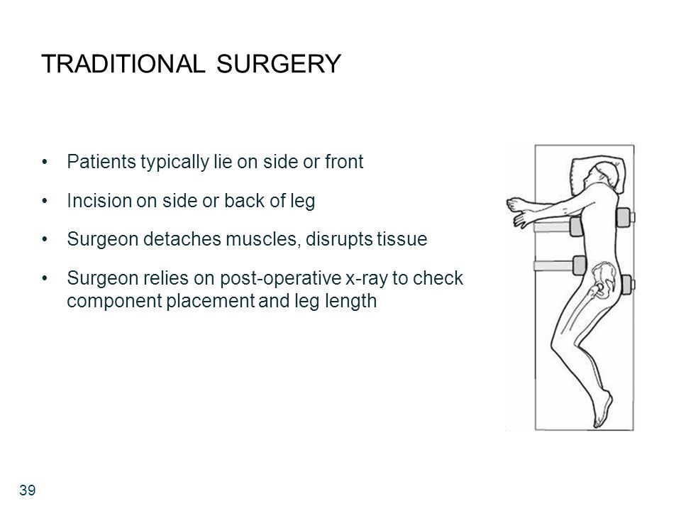 39 TRADITIONAL SURGERY Patients typically lie on side or front Incision on side or back of leg Surgeon detaches muscles, disrupts tissue Surgeon relies on post-operative x-ray to check component placement and leg length