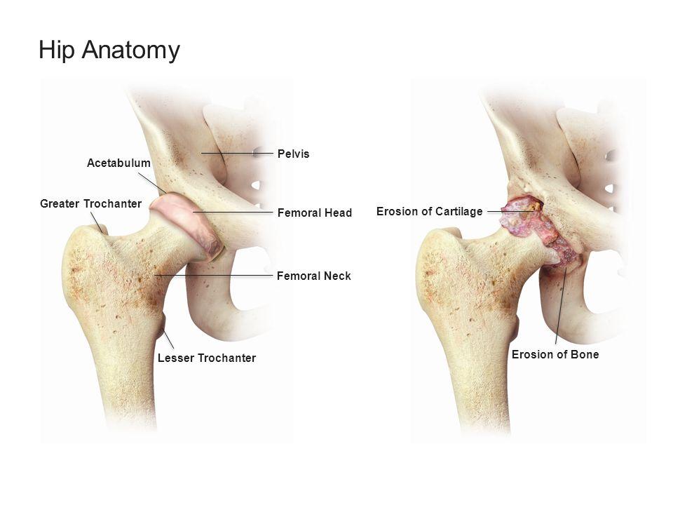 Hip Anatomy Greater Trochanter Acetabulum Lesser Trochanter Femoral Neck Femoral Head Pelvis Erosion of Cartilage Erosion of Bone