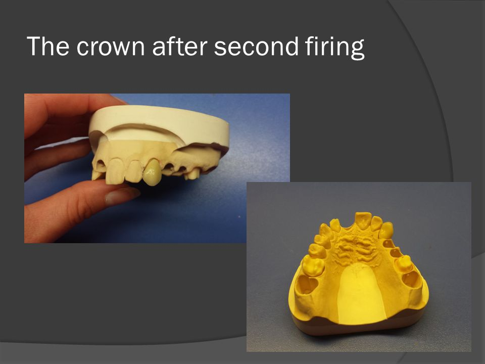 The crown after second firing
