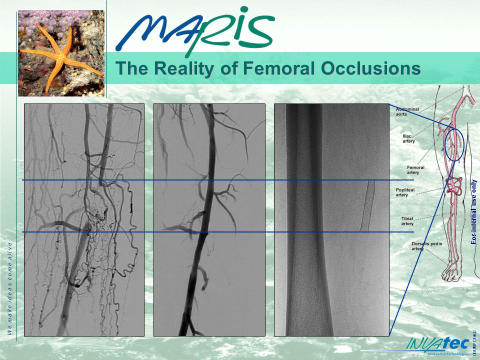 W e m a k e i d e a s c o m e a l i v e 001IMP120402 For internal use only The Reality of Femoral Occlusions