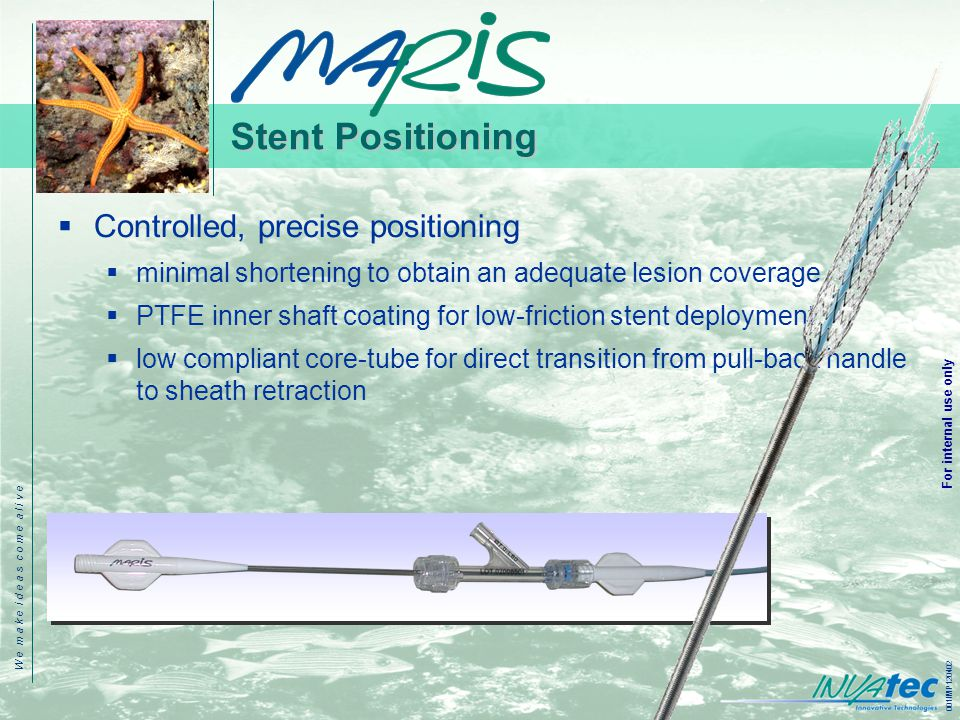 W e m a k e i d e a s c o m e a l i v e 001IMP120402 For internal use only Stent Positioning  Controlled, precise positioning  minimal shortening to obtain an adequate lesion coverage  PTFE inner shaft coating for low-friction stent deployment  low compliant core-tube for direct transition from pull-back handle to sheath retraction