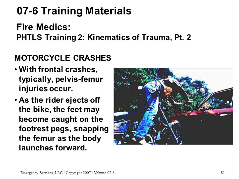 Emergency Services, LLC / Copyright 2007 / Volume 07-681 MOTORCYCLE CRASHES With frontal crashes, typically, pelvis-femur injuries occur.