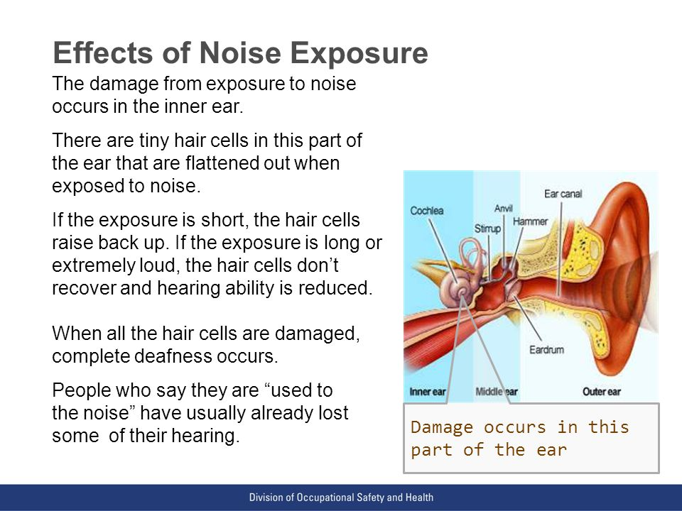 VPP: The Standard of Excellence in Workplace Safety and Health Effects of Noise Exposure The damage from exposure to noise occurs in the inner ear.