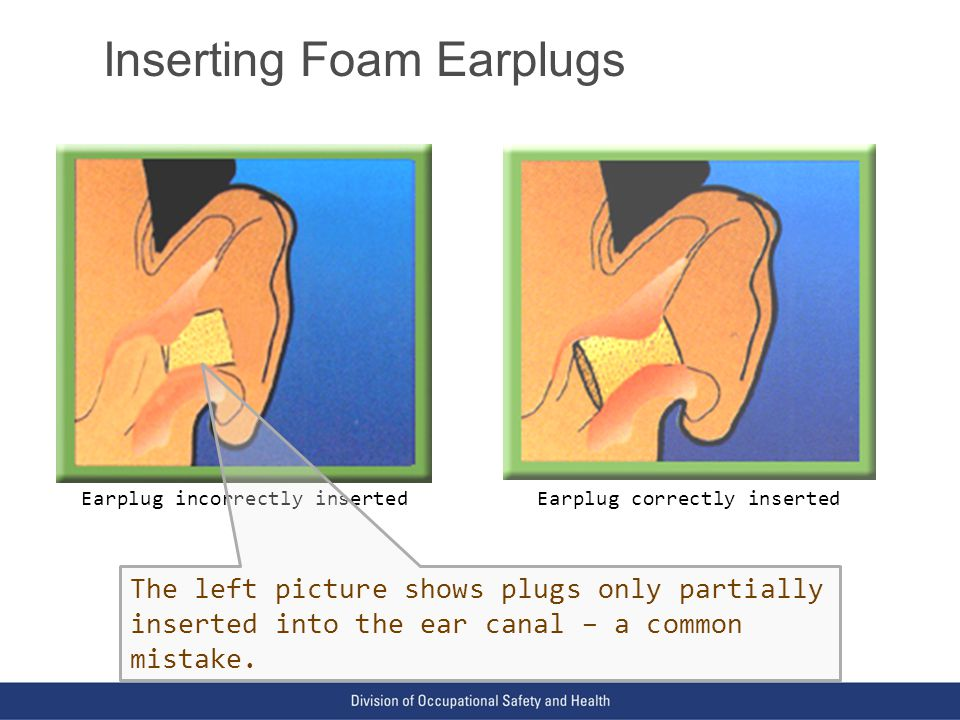 VPP: The Standard of Excellence in Workplace Safety and Health Inserting Foam Earplugs Earplug incorrectly insertedEarplug correctly inserted The left picture shows plugs only partially inserted into the ear canal – a common mistake.