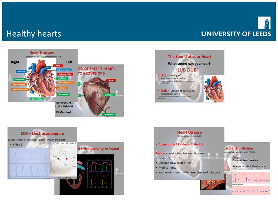 Healthy hearts