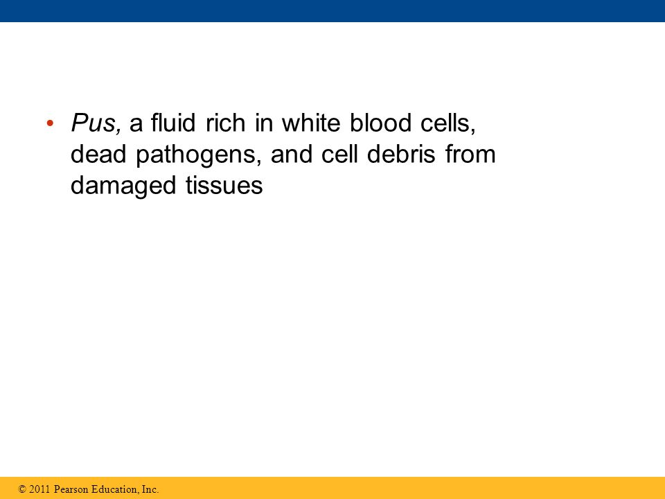 Pus, a fluid rich in white blood cells, dead pathogens, and cell debris from damaged tissues © 2011 Pearson Education, Inc.