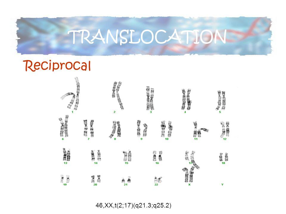 46,XX,t(2;17)(q21.3;q25.2) TRANSLOCATION Reciprocal