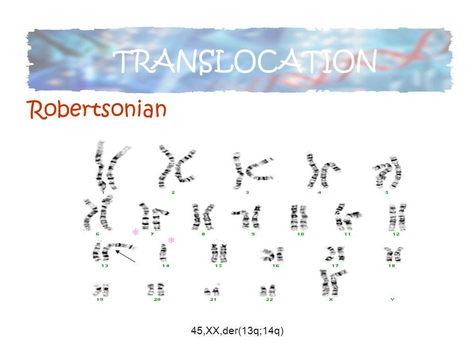 45,XX,der(13q;14q) * * TRANSLOCATION Robertsonian