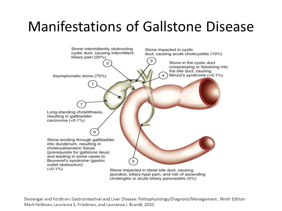 Manifestations of Gallstone Disease Sleisenger and Fordtran: Gastrointestinal and Liver Disease: Pathophysiology/Diagnosis/Management, Ninth Edition Mark Feldman, Lawrence S.