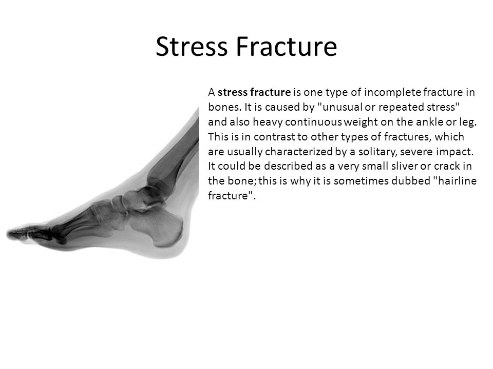 Stress Fracture A stress fracture is one type of incomplete fracture in bones. It is caused by