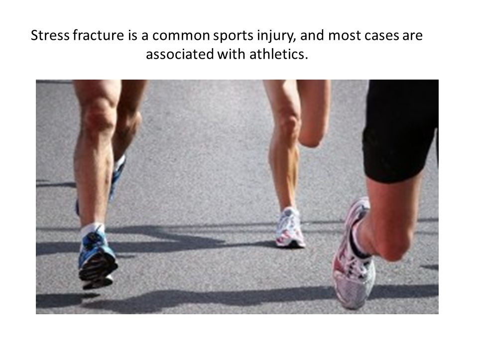 The most common sites of stress fractures are the second and third metatarsals of the foot.