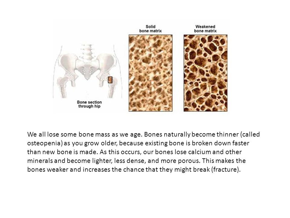 We all lose some bone mass as we age. Bones naturally become thinner (called osteopenia) as you grow older, because existing bone is broken down faste