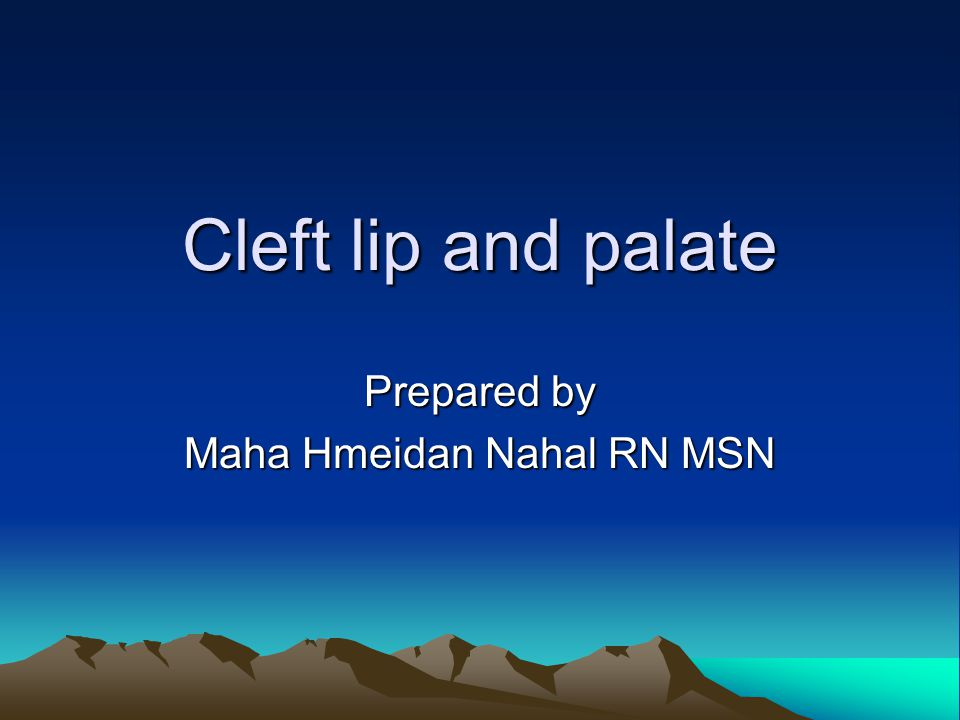 Cleft lip and palate Prepared by Maha Hmeidan Nahal RN MSN