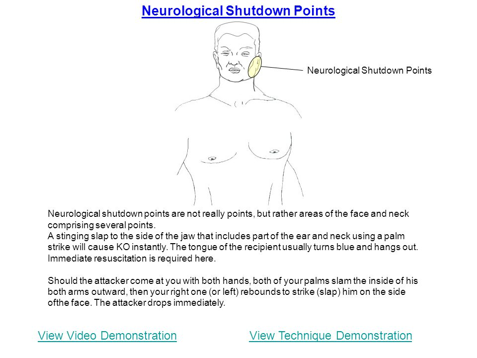 Neurological Shutdown Points Neurological shutdown points are not really points, but rather areas of the face and neck comprising several points. A st