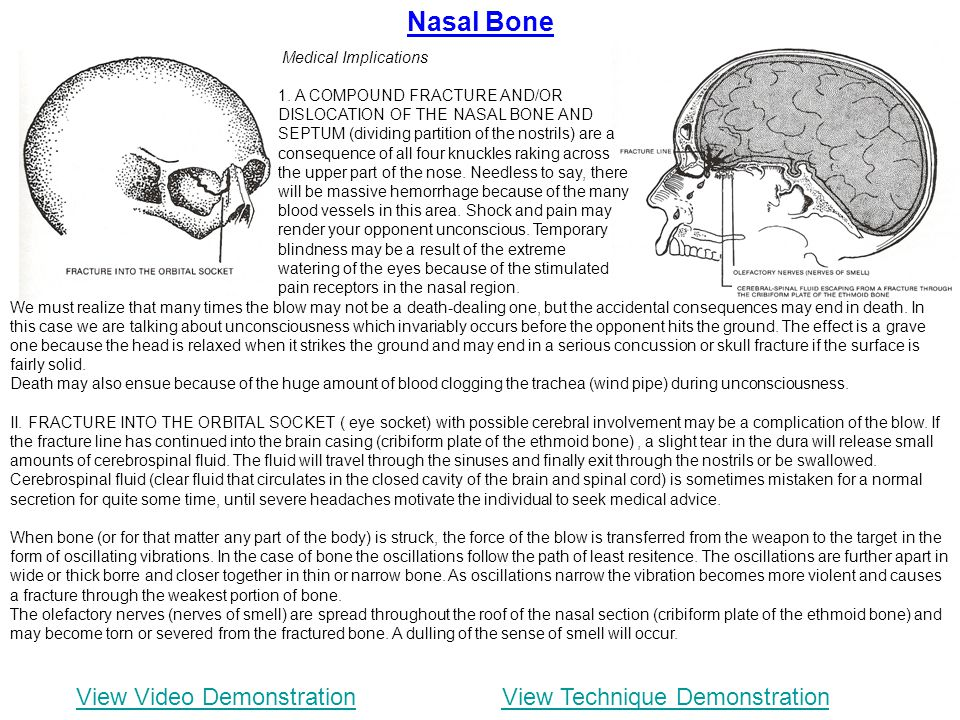 Nasal Bone View Video DemonstrationView Technique Demonstration We must realize that many times the blow may not be a death-dealing one, but the accid
