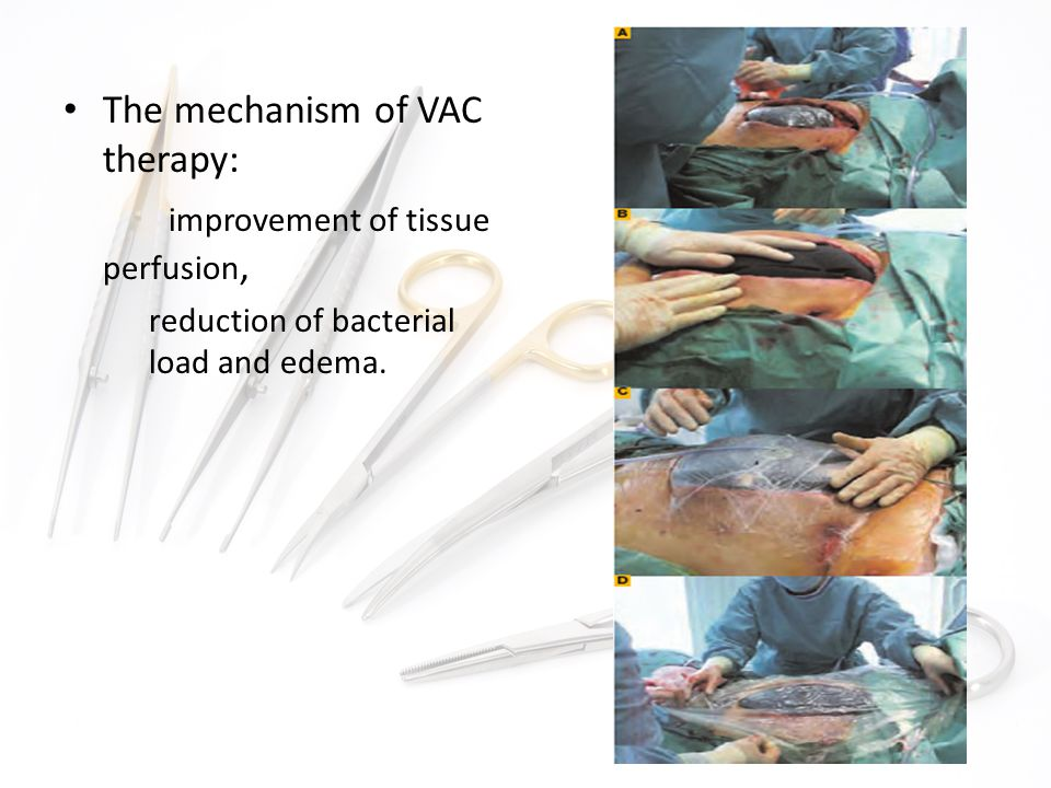 The mechanism of VAC therapy: improvement of tissue perfusion, reduction of bacterial load and edema.