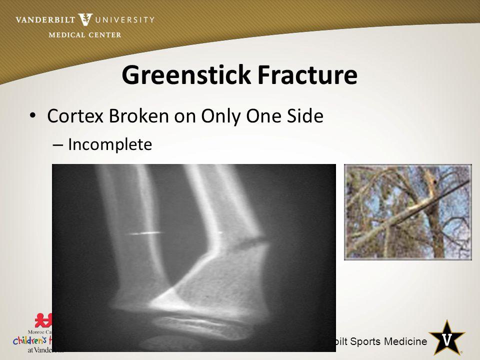 Vanderbilt Sports Medicine Greenstick Fracture Cortex Broken on Only One Side – Incomplete
