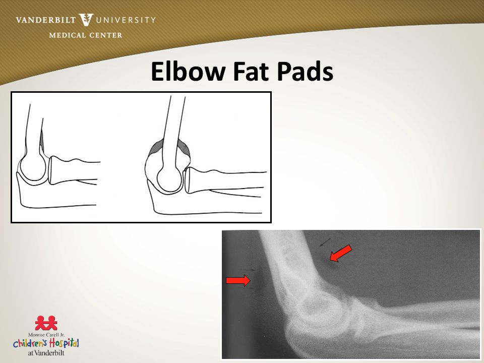 Vanderbilt Sports Medicine Elbow Fat Pads
