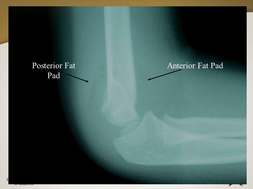 Vanderbilt Sports Medicine Posterior Fat Pad Anterior Fat Pad