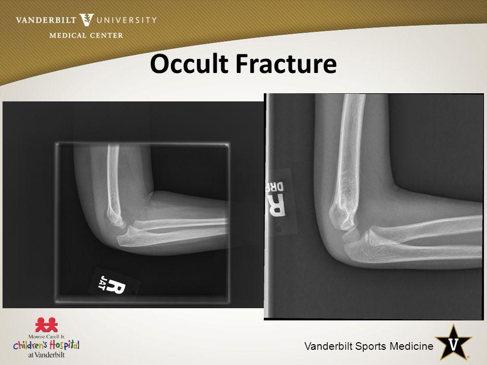 Vanderbilt Sports Medicine Occult Fracture