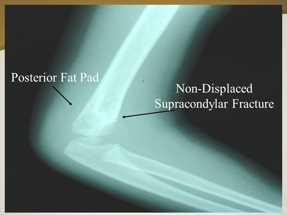 Vanderbilt Sports Medicine Non-Displaced Supracondylar Fracture Posterior Fat Pad