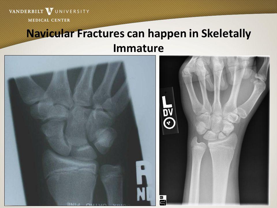 Vanderbilt Sports Medicine Navicular Fractures can happen in Skeletally Immature