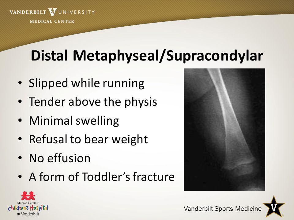 Vanderbilt Sports Medicine Distal Metaphyseal/Supracondylar Slipped while running Tender above the physis Minimal swelling Refusal to bear weight No effusion A form of Toddler's fracture