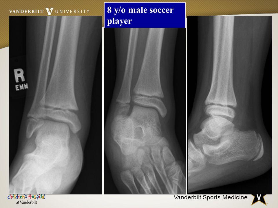 Vanderbilt Sports Medicine 8 y/o male soccer player