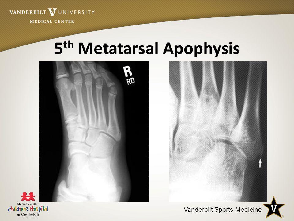 Vanderbilt Sports Medicine 5 th Metatarsal Apophysis