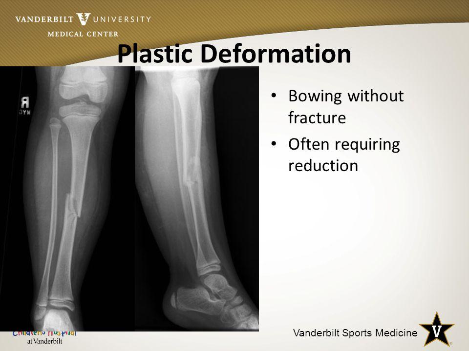 Vanderbilt Sports Medicine Plastic Deformation Bowing without fracture Often requiring reduction
