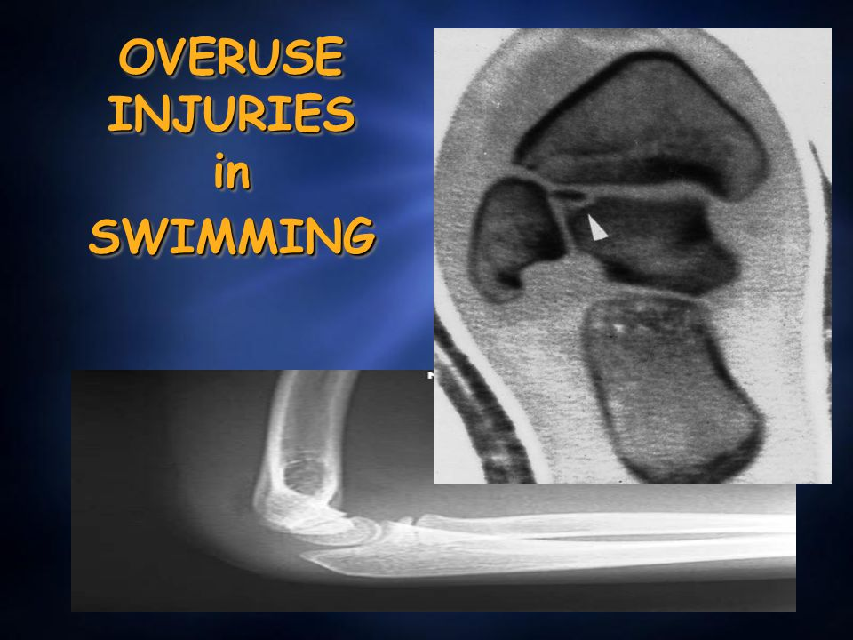 OVERUSE INJURIES in SWIMMING