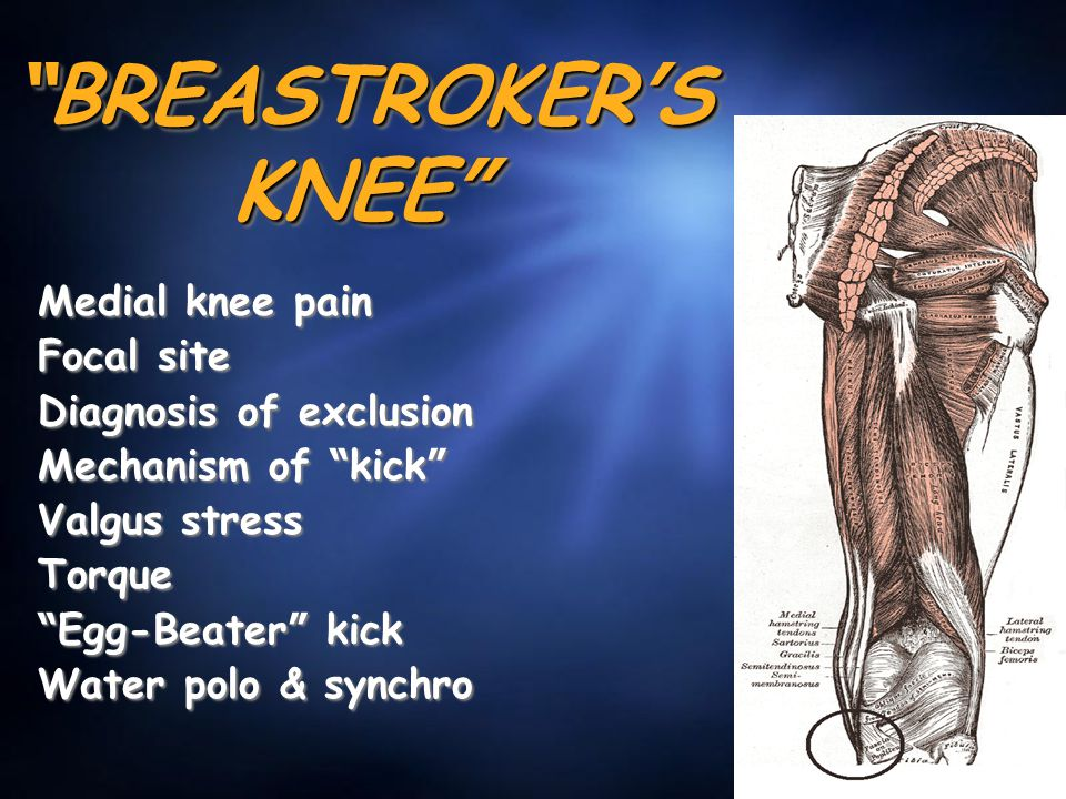 """ BREASTROKER ' S KNEE "" Medial knee pain Focal site Diagnosis of exclusion Mechanism of "" kick "" Valgus stress Torque "" Egg-Beater "" kick Water polo"