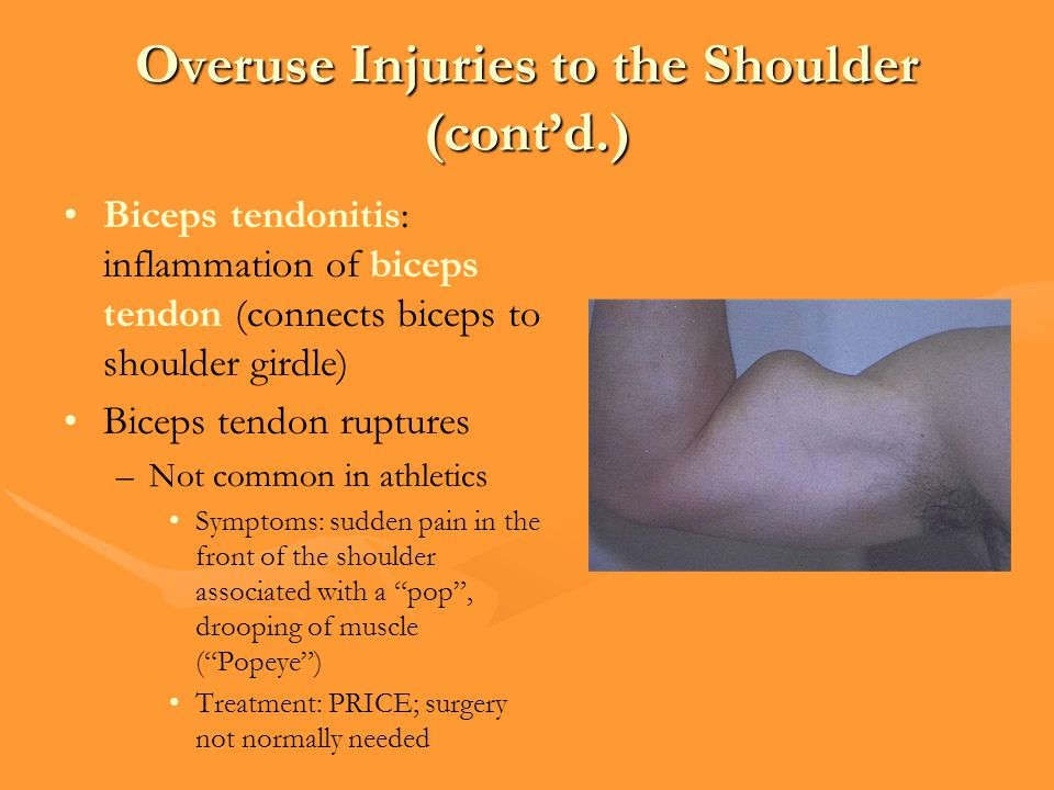 Overuse Injuries to the Shoulder (cont'd.) Biceps tendonitis: inflammation of biceps tendon (connects biceps to shoulder girdle) Biceps tendon ruptures –Not common in athletics Symptoms: sudden pain in the front of the shoulder associated with a pop , drooping of muscle ( Popeye ) Treatment: PRICE; surgery not normally needed
