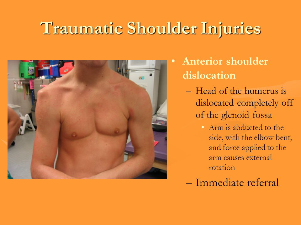 Traumatic Shoulder Injuries Anterior shoulder dislocation –Head of the humerus is dislocated completely off of the glenoid fossa Arm is abducted to the side, with the elbow bent, and force applied to the arm causes external rotation –Immediate referral