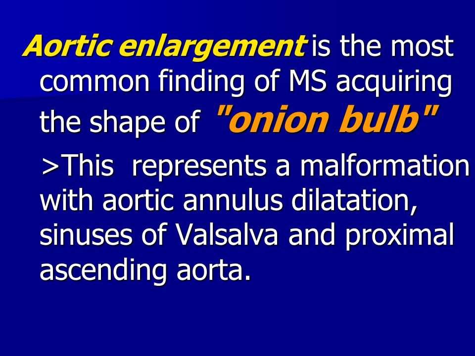 Aortic enlargement is the most common finding of MS acquiring the shape of