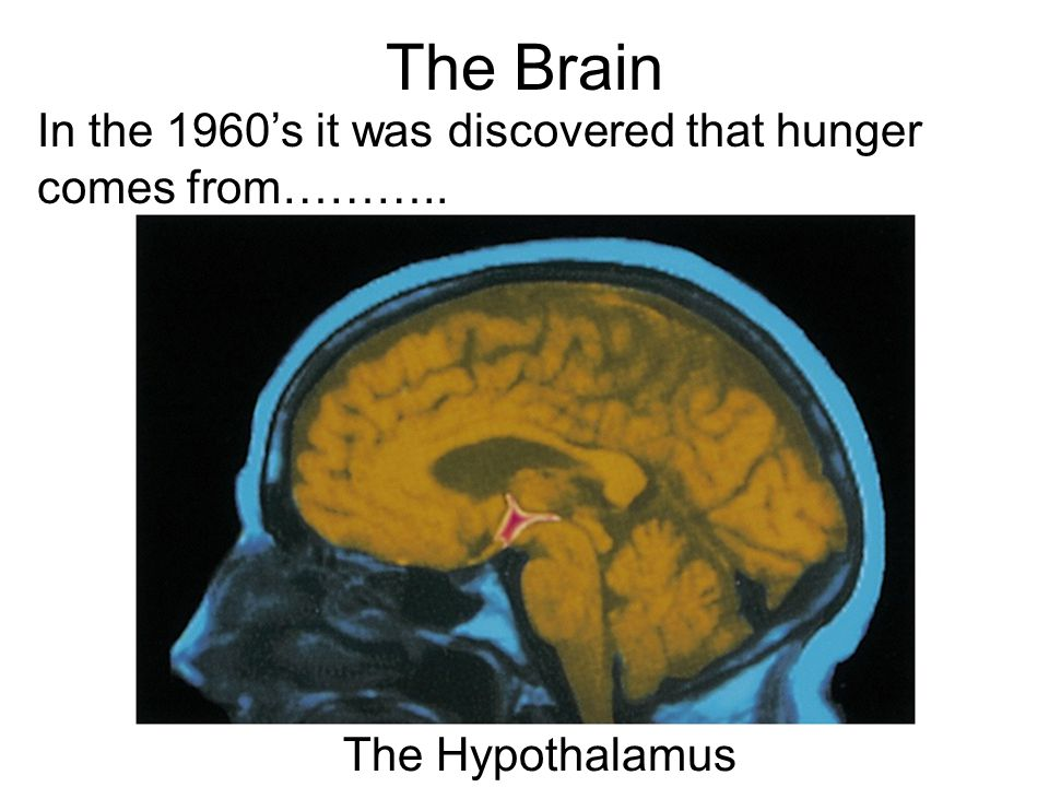 The Brain In the 1960's it was discovered that hunger comes from……….. The Hypothalamus