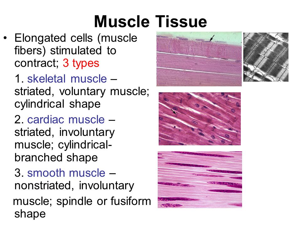 Muscle Tissue Elongated cells (muscle fibers) stimulated to contract; 3 types 1.