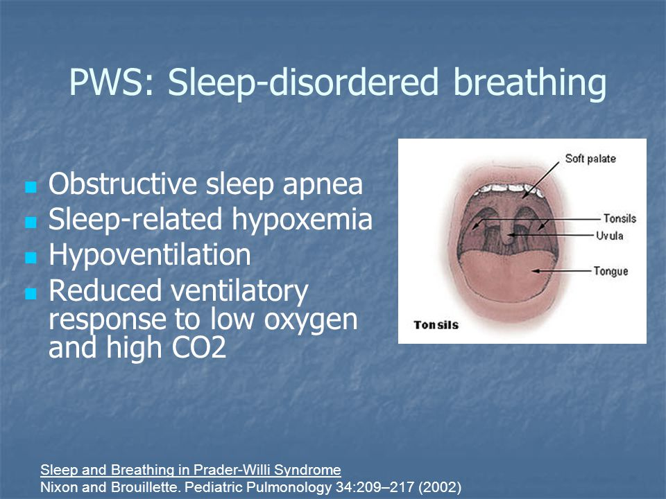 PWS: Sleep-disordered breathing Obstructive sleep apnea Sleep-related hypoxemia Hypoventilation Reduced ventilatory response to low oxygen and high CO2 Sleep and Breathing in Prader-Willi Syndrome Nixon and Brouillette.