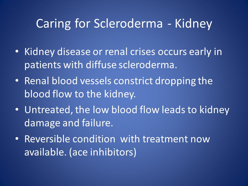 Caring for Scleroderma - Kidney Kidney disease or renal crises occurs early in patients with diffuse scleroderma.
