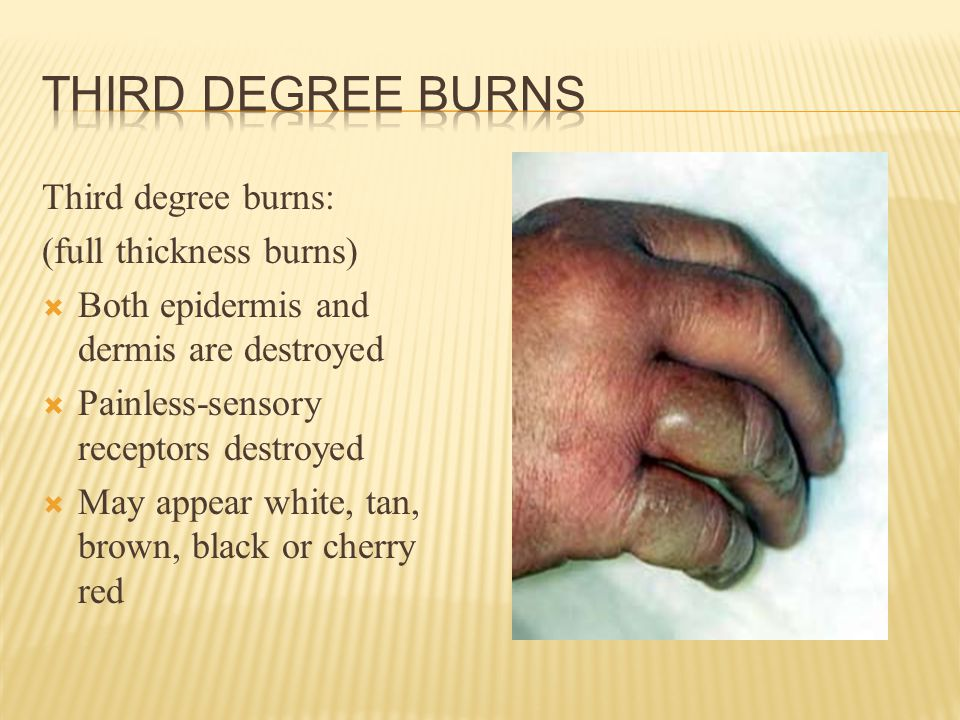 Third degree burns: (full thickness burns)  Both epidermis and dermis are destroyed  Painless-sensory receptors destroyed  May appear white, tan, brown, black or cherry red