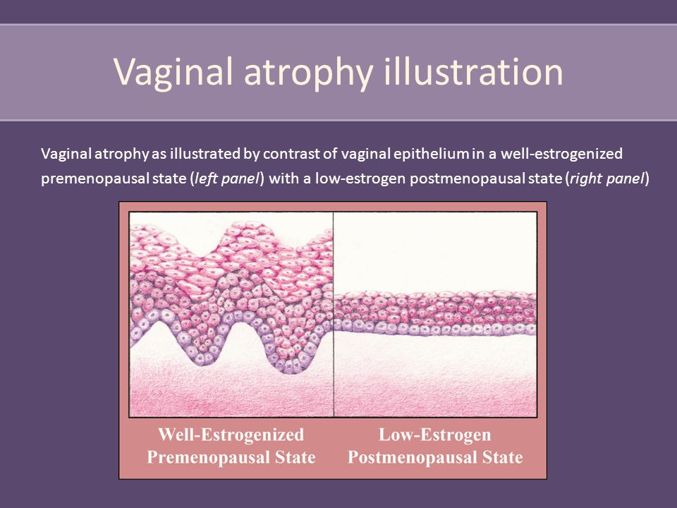 Vaginal atrophy illustration Vaginal atrophy as illustrated by contrast of vaginal epithelium in a well-estrogenized premenopausal state (left panel) with a low-estrogen postmenopausal state (right panel)