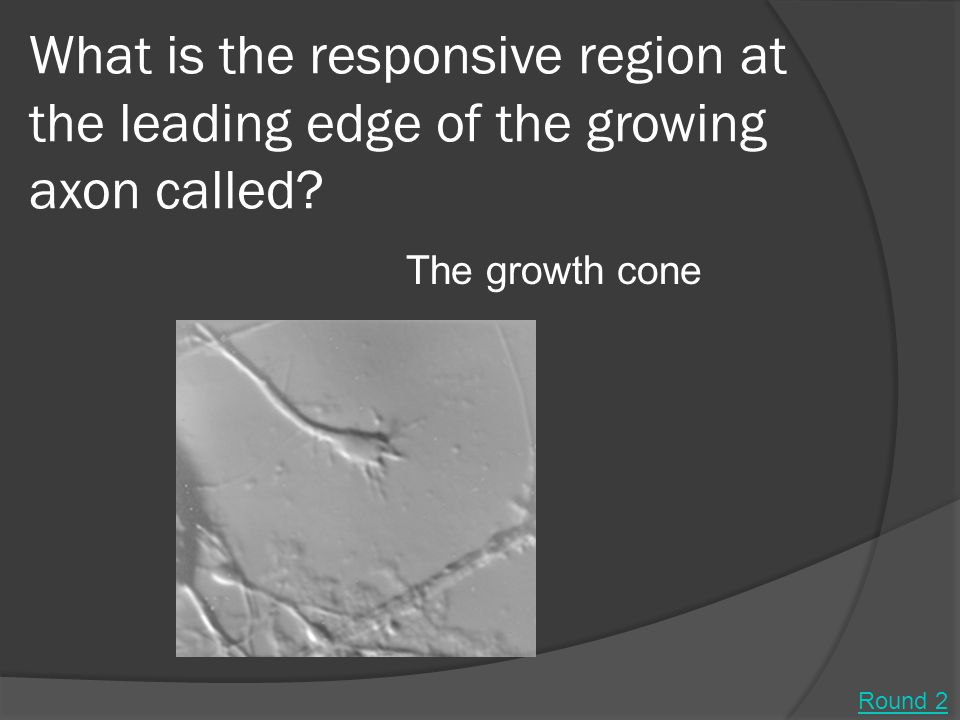 What is the responsive region at the leading edge of the growing axon called.