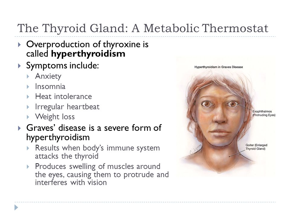 The Thyroid Gland: A Metabolic Thermostat  Overproduction of thyroxine is called hyperthyroidism  Symptoms include:  Anxiety  Insomnia  Heat into