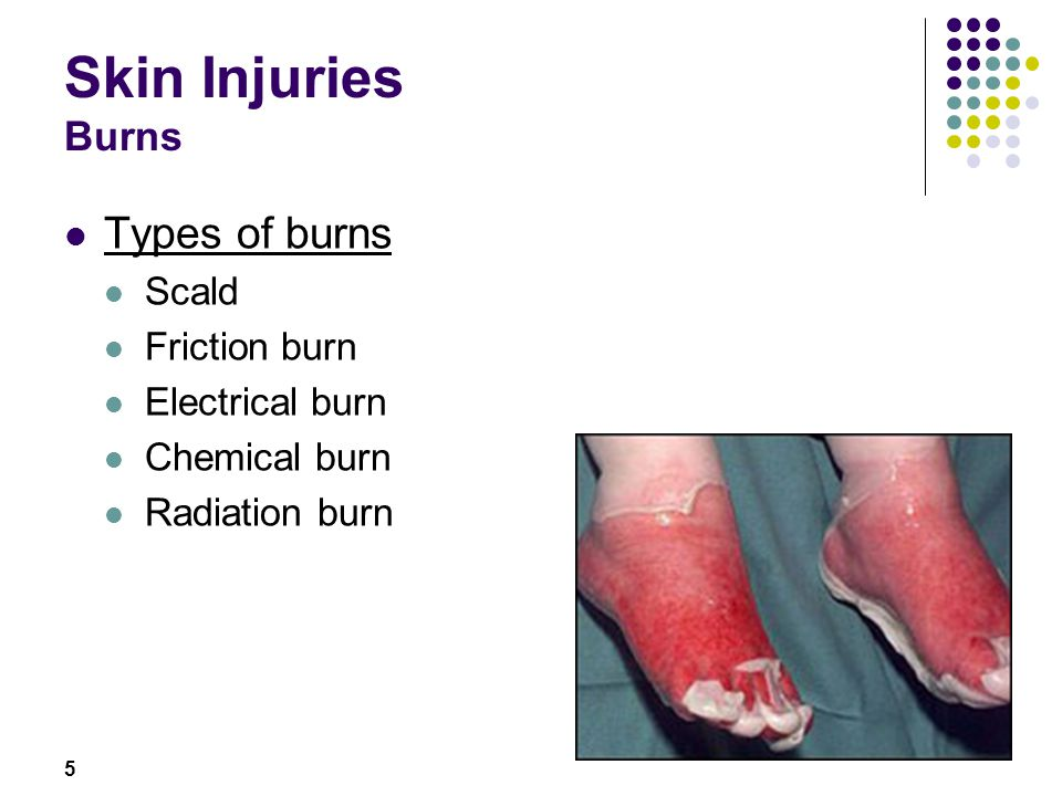 5 Skin Injuries Burns Types of burns Scald Friction burn Electrical burn Chemical burn Radiation burn